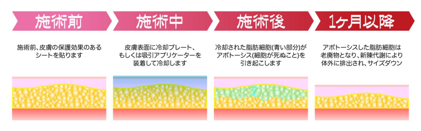 脂肪冷却施術時の脂肪の変化イメージ